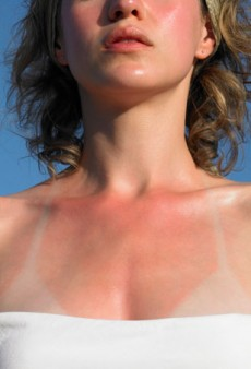 6 Tips to Help You Disguise a Sunburn