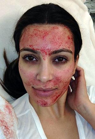 vampire-facial-kim-kardashian-p