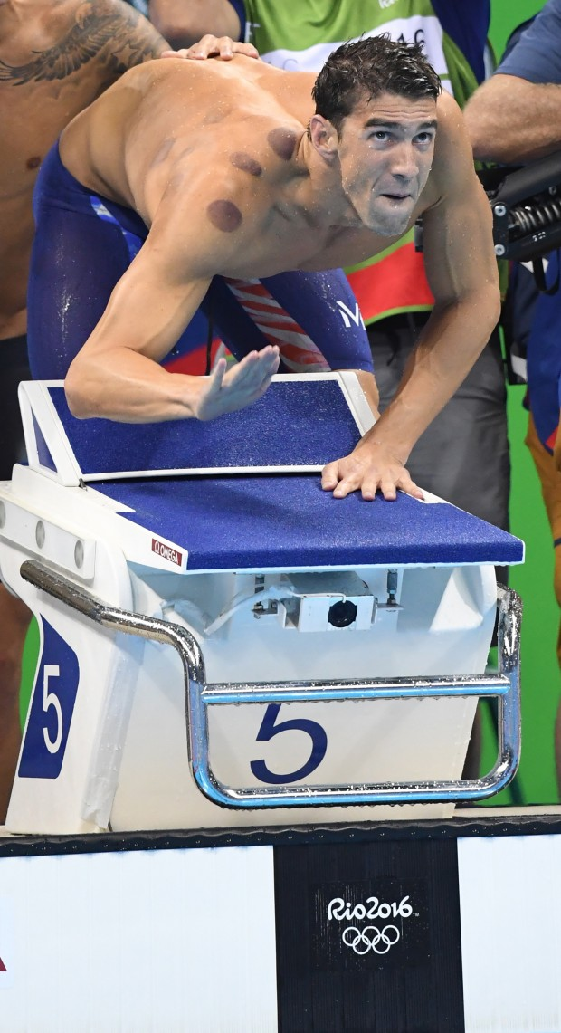 "Once you get over that facial expression, note Olympic swimmer Michael Phelps' brown shoulder marks, the visual results of ""cupping."""