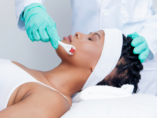 woman getting micro needling dermarolling procedure