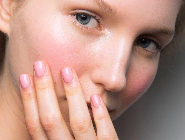 acne adult forum